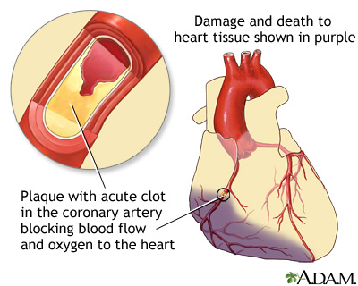 Heart Attack Diagram Introduction To Electrical Wiring Diagrams