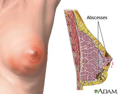 Breast infection